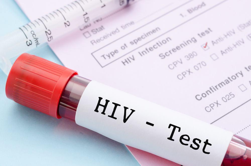 Significado de HIV